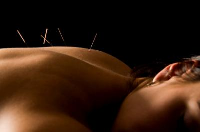 20% Off 1st Treatment Acupuncture